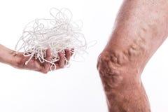 Um emaranhado das cordas com um homem que é doente com as veias varicosas do th Fotografia de Stock Royalty Free