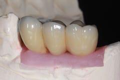 Um fusível da porcelana para metal a ponte dental com porcelana alta do translucency que imitam a cor natural dos dentes fotos de stock royalty free