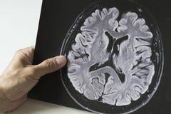 Um homem que guarda a imagem do cérebro MRI fotografia de stock