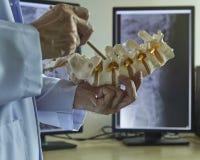 Um neurocirurgião que aponta na raiz de nervo do modelo da vértebra lombar foto de stock royalty free