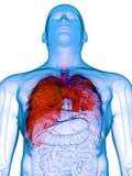 Um pulm?o doente ilustração do vetor