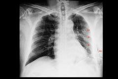 um raio X de caixa de um paciente com fraturas do reforço e enfisema pleural do efusão e o subcutâneo imagens de stock