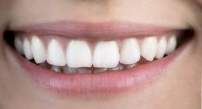 Um sorriso saudável Fotografia de Stock Royalty Free