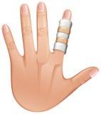 Um tratamento dos primeiros socorros em um dedo ilustração stock