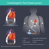 Uma bomba do coração da ferramenta do ` s do cardiologista ilustração do vetor