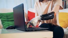 Uma senhora com uma mão biônico está datilografando em seu portátil