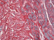 Umbilical Cord Stained with Picrosirius Red stock photography