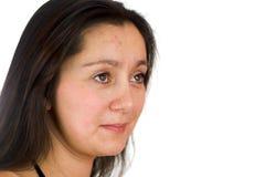 Umgekippte Frau mit Akne Stockfoto
