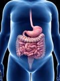 Un appareil digestif obèse de types illustration de vecteur