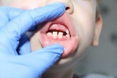 Un dentiste examine les dents de lait dans le gar?on La perte de dents de lait images stock