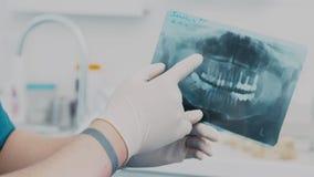Un dentiste tenant un rayon X de dents Demande de règlement dentaire clips vidéos