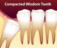 Un diente de sabiduría condensado stock de ilustración