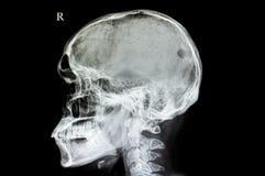un difetto del cranio fotografia stock libera da diritti