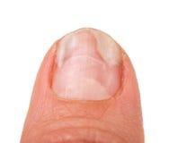 Un finger de la mano con un hongo en los clavos aisló el fondo blanco Imágenes de archivo libres de regalías