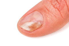 Un finger de la mano con un hongo en los clavos aisló el fondo blanco Foto de archivo