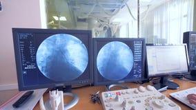 Un gruppo di chirurghi sta realizzando un'operazione ed il suo processo è visualizzato sui monitor stock footage