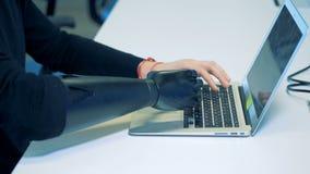 Un hombre con un concepto robótico del brazo del cyborg está mecanografiando en un ordenador metrajes