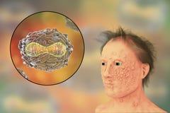 Un hombre con la infección de la viruela y virus de la varicela, un virus de la familia de Orthopoxviridae que causa viruela ilustración del vector