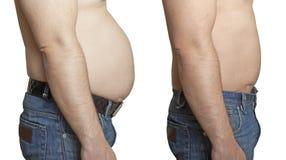 Un hombre con un estómago grande y pequeño Imagenes de archivo