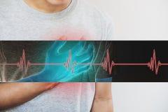 Un hombre que toca su corazón, con la muestra del pulso del corazón Ataque del corazón, y otros enfermedad cardíaca Imagen de archivo