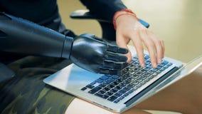 Un homme dactylographie sur un clavier d'ordinateur portable avec ses mains prosthétiques et naturelles Concept de cyborg banque de vidéos