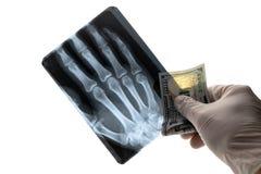 Un homme dans un gant médical tient cent dollars US et une image de rayon X des doigts de sa main sur un fond blanc image libre de droits