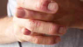 Un homme enduit ses mains de la crème Mains du patient présentant le psoriasis Dermatite sur la peau banque de vidéos