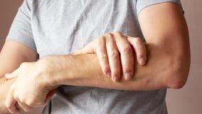 Un homme enduit une main en difficulté de la crème Psoriasis et maladie de la peau clips vidéos