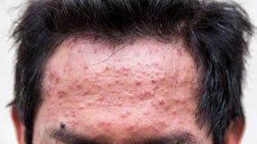Un homme qui ayant la boursouflure ou la varicelle de varicella image stock