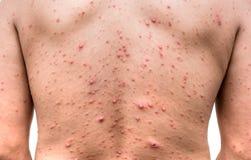 Un homme qui ayant la boursouflure ou la varicelle de varicella Photographie stock