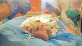Un infermiere installa un tubo di respirazione dentro il naso degli infanti stock footage
