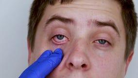 Un medico-oculista esamina l'occhio del paziente in guanti medici blu Concetto di cura della cornea e dell'occhio Sospetto di con stock footage