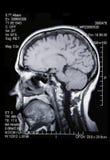 Un MRI/reale MRA Fotografia Stock