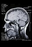 Un MRI/verdadero MRA Foto de archivo