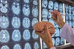 Un neurocirujano que lleva a cabo el modelo del cerebro y que señala en el cerebro MRI imagen de archivo