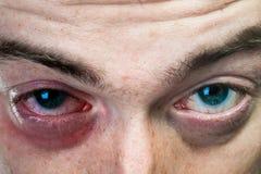 Un occhio nero sul fronte dell'uomo Fotografia Stock Libera da Diritti