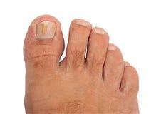 Un ongle d'orteil atteint d'un mycète Images stock
