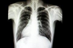 un paziente con il inversus di situs Fotografia Stock