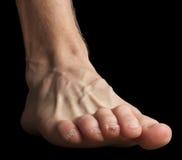 Un pied avec la peau cassée sur tep photographie stock
