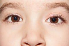 Un porcile di infezione di occhio - infiammazione superiore della palpebra fotografie stock