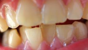Un primer de dientes torcidos metrajes