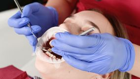 Un primer de la cara de la muchacha es examinado por un examinador dental con su boca abierta y una servilleta y los ojos cerrado almacen de video