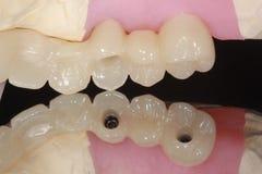 Un puente del implante dental con la reflexión del agujero occlusal del tornillo fotografía de archivo