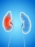 Un rene infiammato illustrazione vettoriale