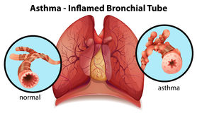 Un tube bronchique asthme-enflammé Photos libres de droits