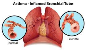 Un tubo bronchiale asma-infiammato Fotografie Stock Libere da Diritti