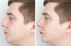 Un uomo alla ricezione al chirurgo plastico Prima della chirurgia del naso, rinoplastica fotografie stock libere da diritti