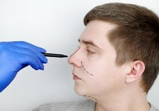 Un uomo alla ricezione al chirurgo plastico Prima della chirurgia del naso, rinoplastica fotografia stock