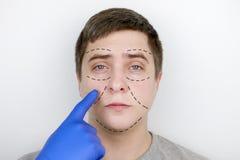 Un uomo alla ricezione al chirurgo plastico Prima di chirurgia plastica: ascensore del sopracciglio, della fronte, del mento e de immagine stock libera da diritti