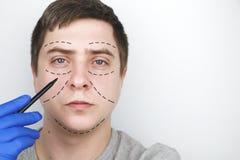 Un uomo alla ricezione al chirurgo plastico Prima di chirurgia plastica: ascensore del sopracciglio, della fronte, del mento e de immagine stock